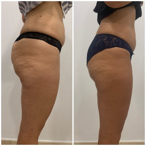 carboxiterapia clinicas dh