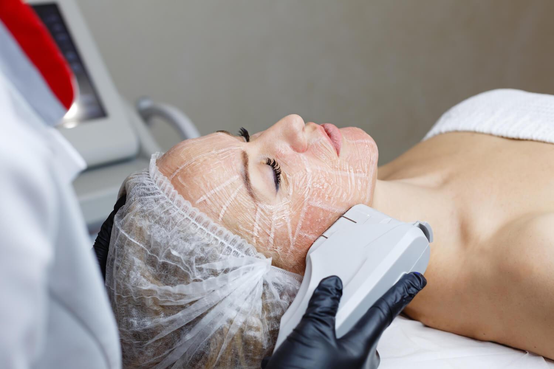 lifting facial sin cirugía - láser IPL