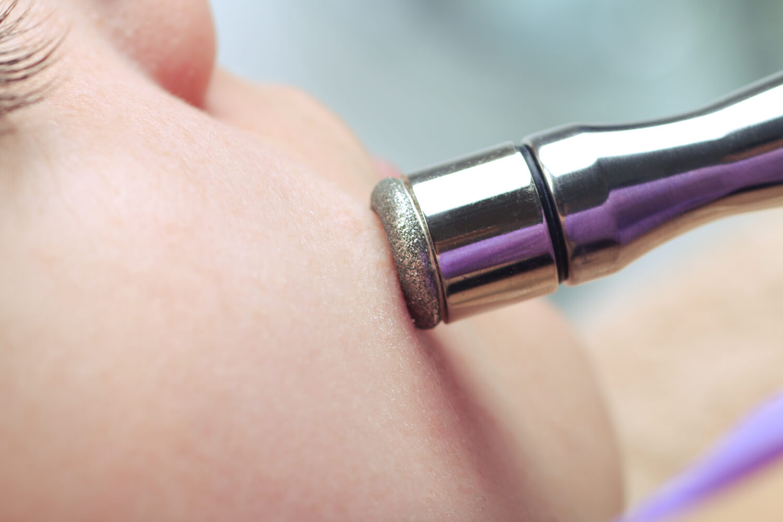 Microdermoabrasión con punta de diamante
